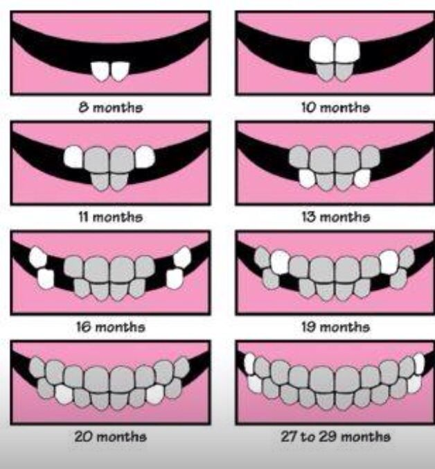 62 best Dental Hygiene <3 images on Pinterest
