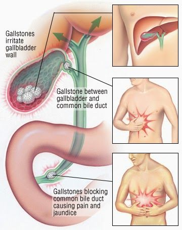 Home Remedies For Gallstones - Get Rid Of This Problem - Best Home Remedies