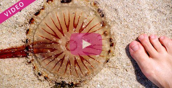 Généralement bénignes, les piqûres de méduse peuvent néanmoins être douloureuses. Découvrez en vidéo les solutions pour soigner et soulager une piqûre de méduse.