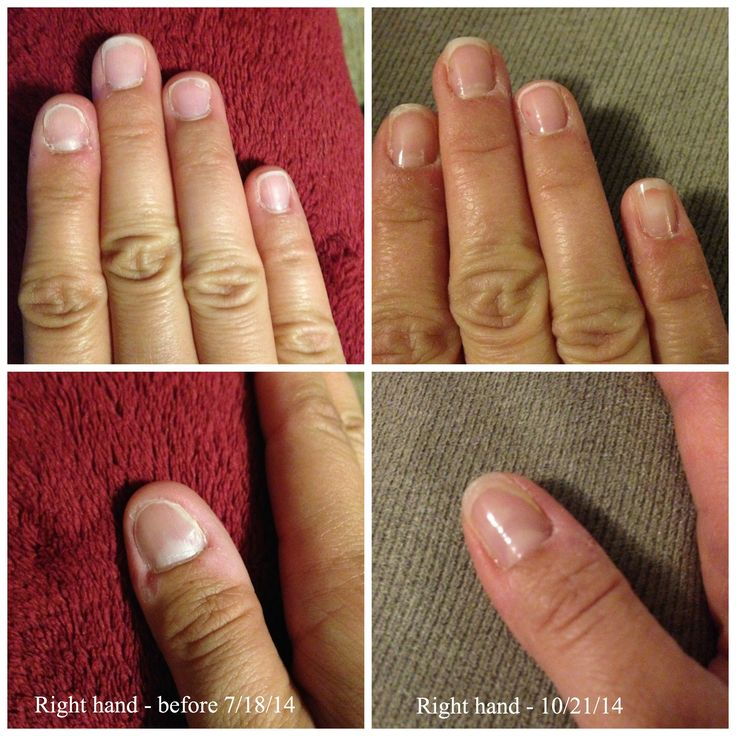 Nail Art For Bitten Nails