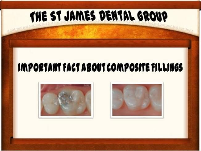 Some Important Facts About Composite Fillings by stjamesdentalgroup via authorSTREAM