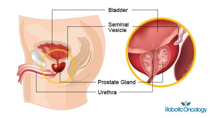 Prostate Cancer Information