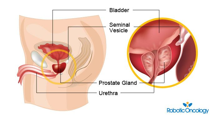 Prostate Cancer Information