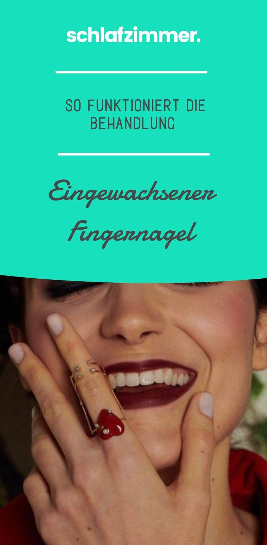 Eingewachsener Fingernagel: So funktioniert die Behandlung