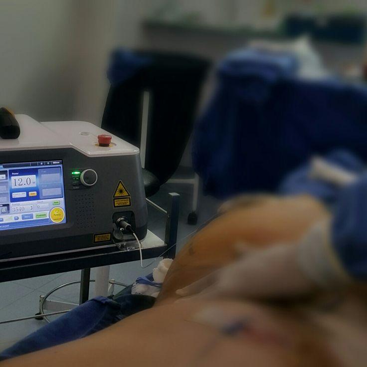 Hoy jornada de #lipolaser o Laserlipólisis  con #bodycontour  #brazilianbuttlift  o #aumentodegluteos  #surgeryday #surgerytime  @-✔✔Somos concientes que la cirugia plastica trata necesidades individuales  y cada caso para todo nuestro grupo es unico.  @ 💯💯💯Conocer  sobre los procedimientos :  @ http://www.gerardocamacho.com/Cirugia-Estetica/Corporal-Mujeres/Lipectomia-Abdominal-Abdominoplastia-Bogota-Colombia…