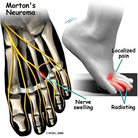Have pain in the front of foot? It might be a neuroma.