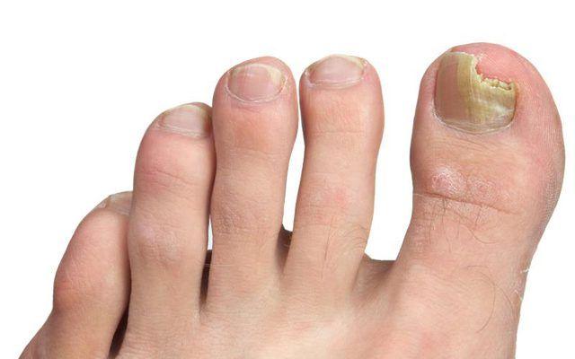 How to Soak the Feet for Toenail Fungus