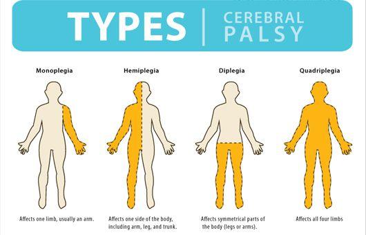 Cerebral palsy - Tìm với Google
