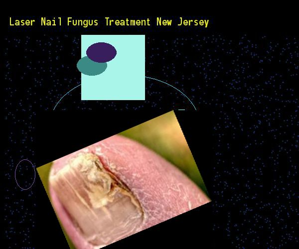 Laser nail fungus treatment new jersey - Nail Fungus Remedy. You have nothing to lose! Visit Site Now