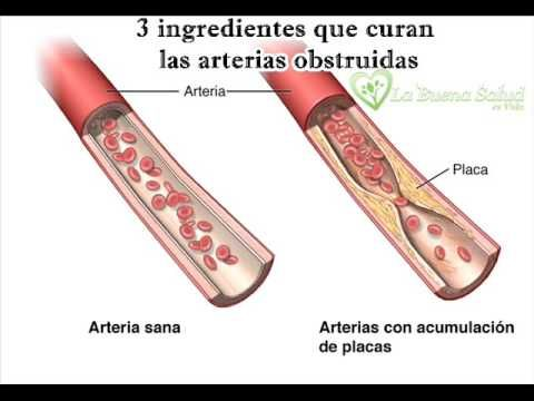3 Ingredientes que curan las arterias obstruidas - YouTube