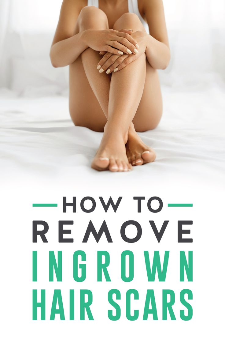 How to Treat Ingrown Hair Scars