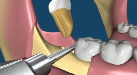 If Dentist recommends you for Wisdom Teeth Removal, you'll have to do it smart, and carefully and follow all kind of instructions for proper healing. Our qualified Dentists at Ballarat Dental Care have expertise in wisdom tooth removal and extraction Procedure. For more details, Visit us today: http://www.ballaratdentalcare.com.au/ballarat-dentist-wisdom-teeth-removal/