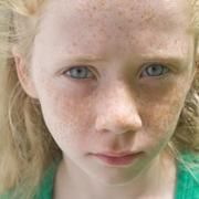 Red Freckles & Moles on the Body | LIVESTRONG.COM