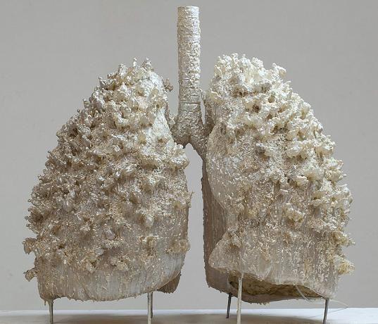 I polmoni sono uno degli organi più importanti del nostro corpo. Lavorano 24 ore al giorno e ci consentono di respirare ossigeno, indispensabile per la nostra sopravvivenza. Purtroppo, però, l'aria che respiriamo non è sempre sana e non sempre i nostri polmoni sono in salute. Possono andare incontro a malattie asmatiche, infezioni respiratorie, polmoniti, cancro …