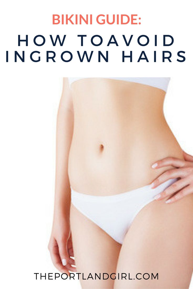 Avoid ingrown hairs bikini speaking