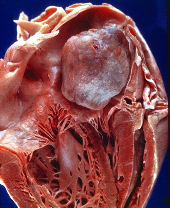 A Tumor In The Heart Atrial Myxoma The Left Atrium Has
