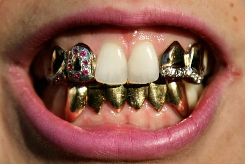 Women Wearing Grills Is A Feminist Action As Mostly Men