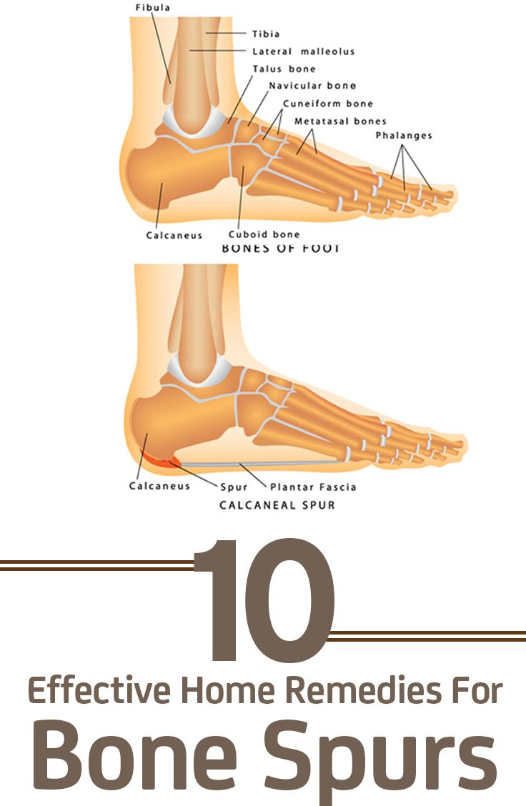 Natural Remedies For Stress Fractures