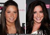 Bristol Palin face plastic surgery