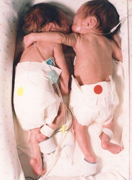 Gemelle premature si abbracciano prima di morire…. quello che è successo ha scioccato anche i medici leggete questa storia emozionante