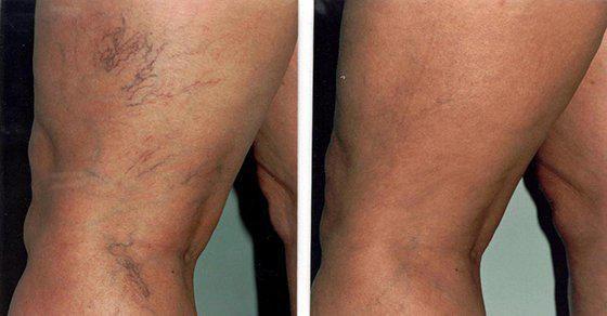 Les varices peuvent être gênantes et inesthétiques. Ce sont des veines endommagées dans lesquelles le sang circule mal. Elles sont bleuâtres, dilatées et tordues. Les muscles de la jambe pompent les veines pour renvoyer le sang vers le cœur. Lorsque les veines deviennent des varices, les feuillets des valves ne répondent plus correctement, et les valves ne fonctionnent …