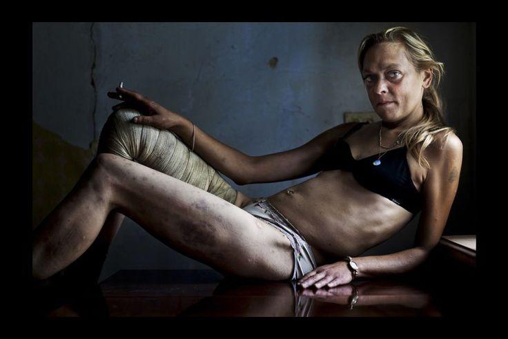 Brent Stirton - Problèmes contemporains, 1er prix cliché seul31 Août 2011. Maria, toxicomane et prostituée, entre deux clients, dans la chambre qu'elle loue à Kryvyi Rig, en Ukraine. Maria s'injecte des drogues quotidiennement et voit beaucoup d'hommes passer chaque semaine mais affirme qu'elle reste séronégative. Elle dit qu'elle a besoin d'argent pour subvenir à ses besoins, notamment en drogue, et ceux de sa fille de 9 ans.