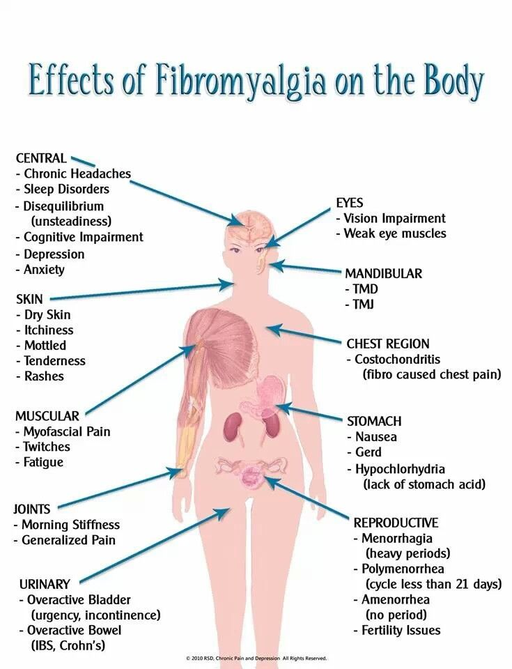 Effects of fibromyalgia on the body