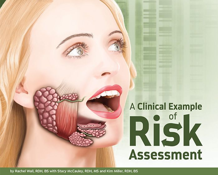 A Clinical Example of Risk Assessment by Rachel Wall, RDH, BS with Stacy McCauley, RDH, MS and Kim Miller, RDH, BS