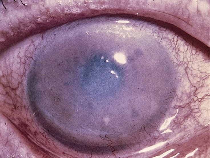 health articles on the eye