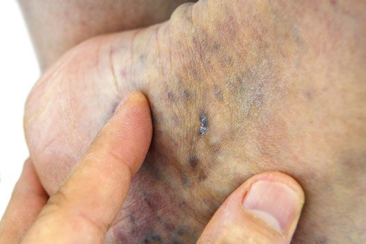 Advance stages of vein disease result in discoloration of ...