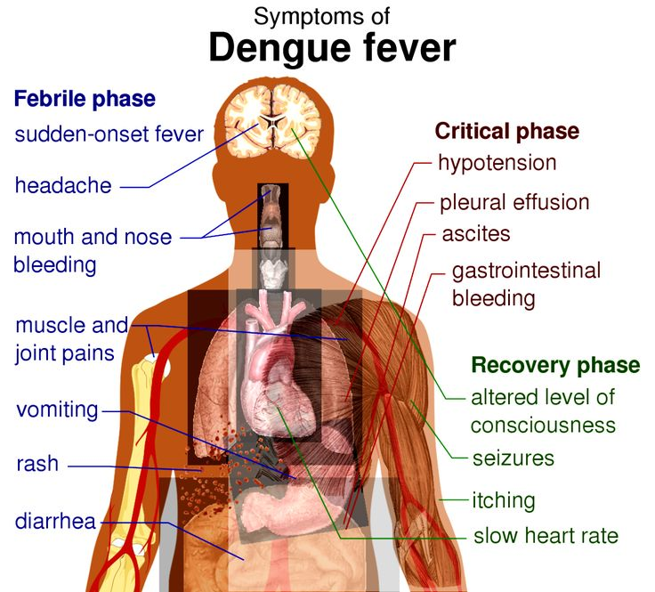 Best Natural Medicine For Dengue