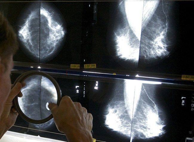 This lesser known breast cancer warning sign helped save British woman's life - National | Globalnews.ca