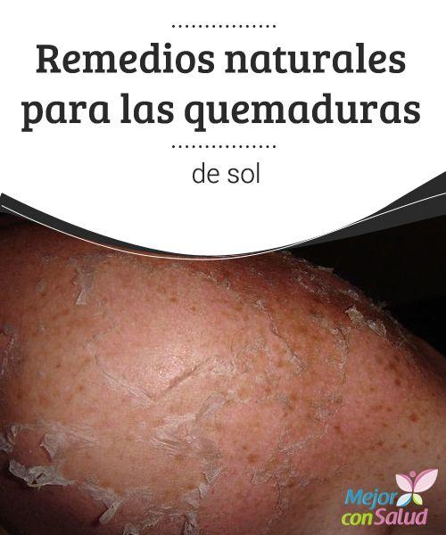 Remedios naturales para las quemaduras de sol Existen productos naturales que nos ayudan a sanar las lesiones o, en su defecto, a minimizar las molestas sensaciones de las quemaduras, ¡conócelas!