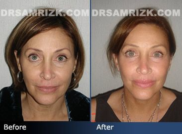 Before and after photo of a 54 year old female patient who had a facelift and neck lift.