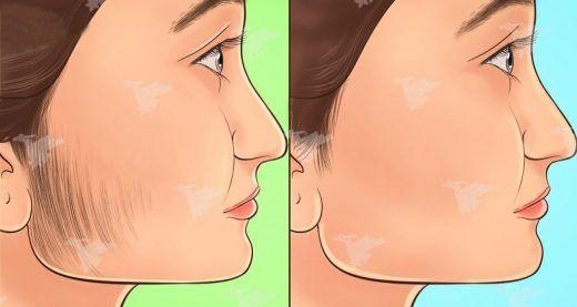 Beaucoup de femmes connaissent une croissance inhabituelle de poils au niveau du visage. Cet état agaçant s'appelle « hirsutisme » et peut se produire en raison de différents facteurs, notamment l'hérédité, les déséquilibres hormonaux et la prise de certains médicaments.. Afin de se débarrasser de ses poils indésirables, les femmes ont généralement recours à l'épilation à la cire ou à d'autres traitements coûteux et parfois douloureux. Cependant, il existe des remèdes naturels, facile...