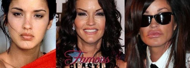 Janice Dickinson Plastic Surgery Awful Plastic Surgery