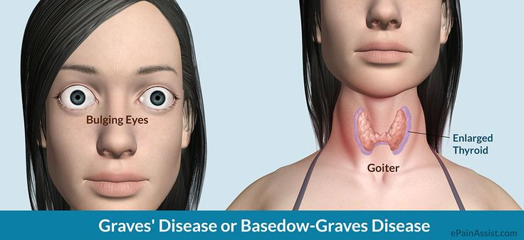 Syndrome Read:http://www.epainassist.com/autoimmune/graves-disease-or-basedow-graves-disease
