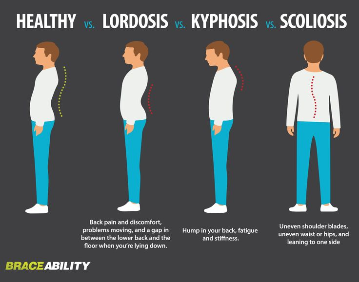 Find out what spinal curvature disorder you have: lordosis, kyphosis, scoliosis. | BraceAbility