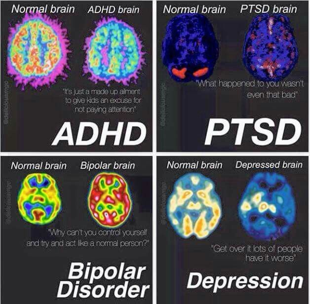 mental illness paper mind brain Imagine your mind racing from these are just a few of the symptoms that accompany mental illnesses like addiction and mental illness are both brain.
