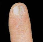 Onychorrhexis - • brittle, dry, splitting nails  • layers of the nail may be peel giving - flaky appearance  • deep split may occur  • may be caused by illness or harsh treatments or products