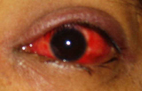 What is Pink Eye? Causes, Symptoms, and Treatment