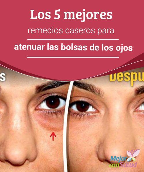 Plazmolifting de la pigmentación de la persona las revocaciones