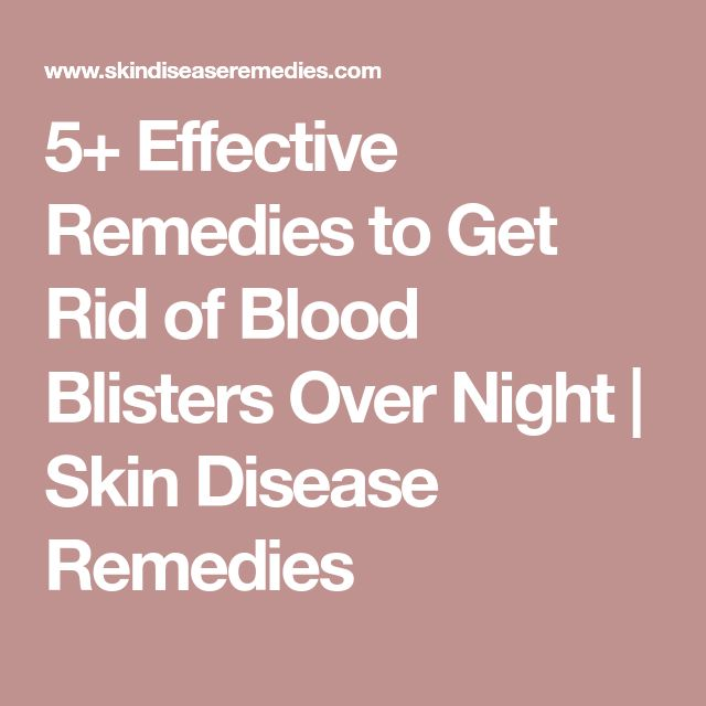 5+ Effective Remedies to Get Rid of Blood Blisters Over Night | Skin Disease Remedies