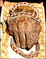 The king's right hand, known as the Holy Right, is kept as a relic. Hungarians interpreted the incorruptibility of his right arm and hand - with which he had held the Holy Crown aloft from his deathbed when asking Virgin Mary to be the Queen of the Hungarians - as a sign that the Blessed Virgin Mary had accepted the king's offer to her of the Hungarian people, and she remains officially their queen. The incorrupt arm was divided among European royalty, but the Holy Right of King Saint…
