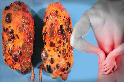 Salud al Día: 10 hábitos comunes que dañan seriamente sus riñone...