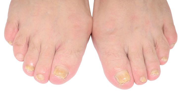 People think that nail fungus is a simple cosmetic problem, and ignore going to have it checked, they may think it is caused by poor hygiene. But, for knowledge, nails are a window to a person's health. Sometimes nail fungus is the first place a disease often shows up.Click Here:http://womanactives.com/nail-infection-treatment