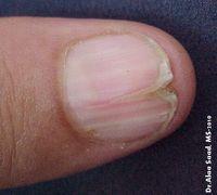 splitting nails (1)