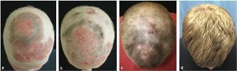 Hair Loss News: Arthritis Drug Regrows Full Head of Hair In Patient With Alopecia Universalis