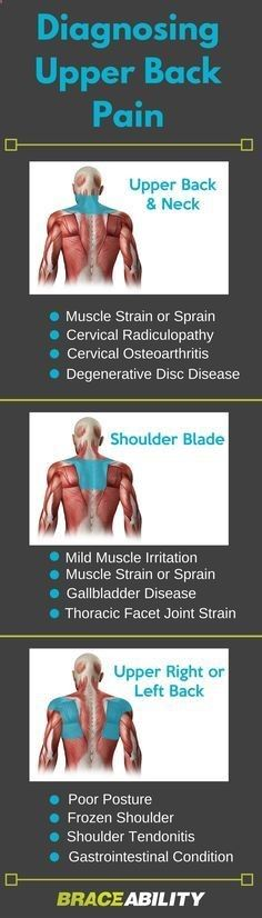 What is causing my upper back pain? This can help you to self diagnose your back pain problems in your upper back and neck, shoulder blades, and your upper right or left back area.   BraceAbility