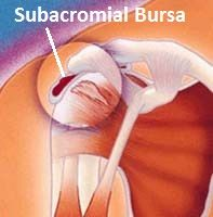 Any decrease in the subacromial space places increased pressure on the bursa which can lead to subacromial bursitis.  It is often accompanied by shoulder impingement.